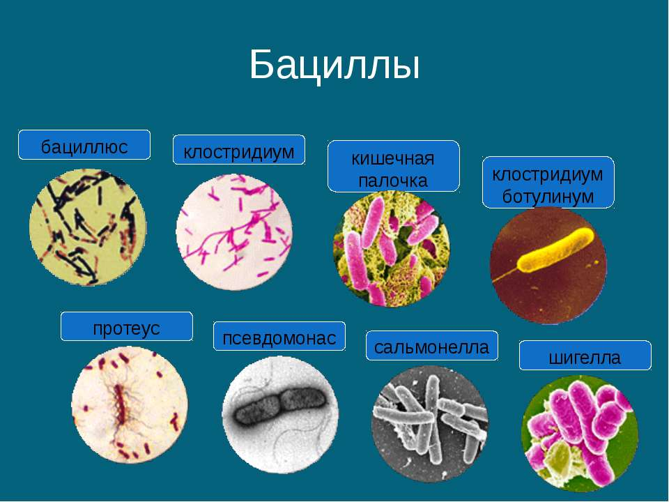Бациллы протеус псевдомонас сальмонелла шигелла кишечная палочка клостридиум ...