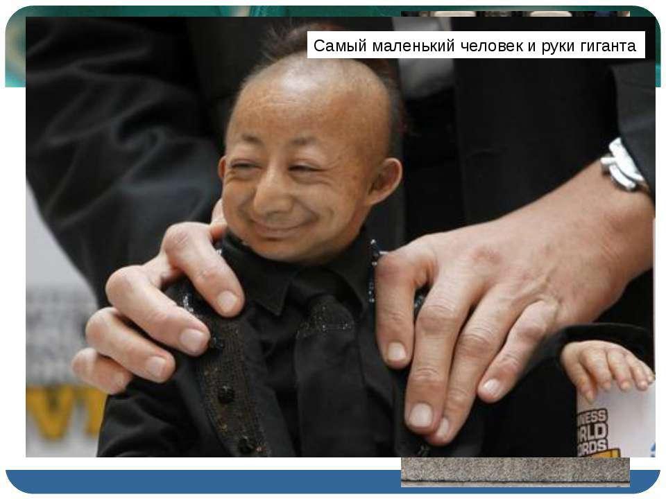 Китаец Хэ Пинпин родился с одной из разновидностей карликовости – его рост со...