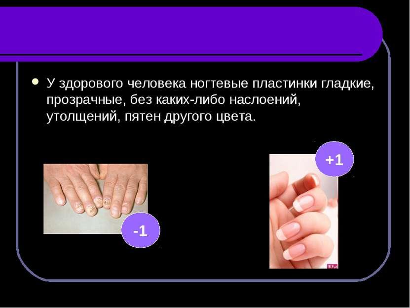 У здорового человека ногтевые пластинки гладкие, прозрачные, без каких-либо н...