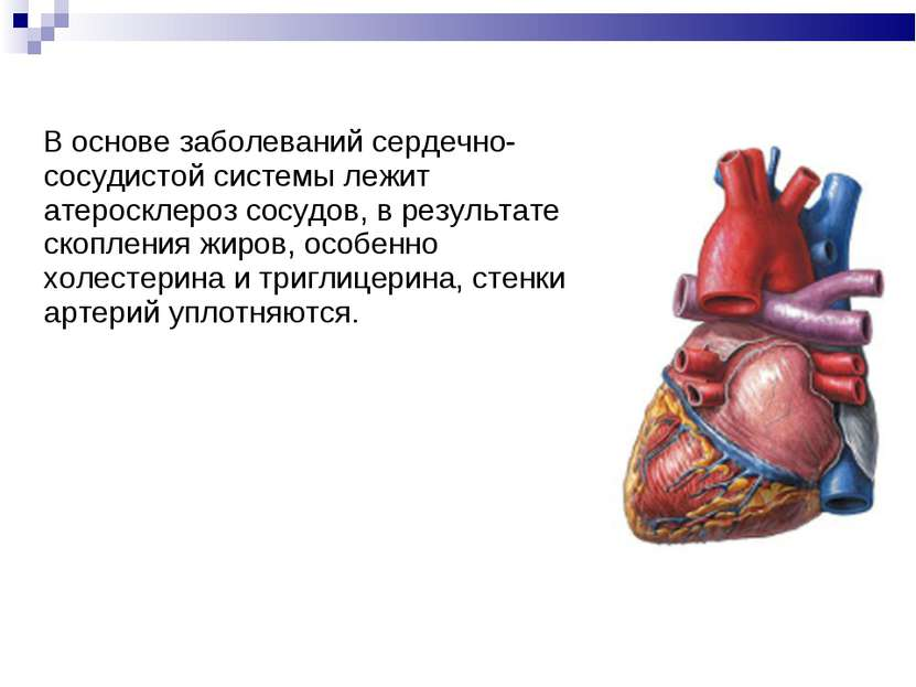 В основе заболеваний сердечно-сосудистой системы лежит атеросклероз сосудов, ...