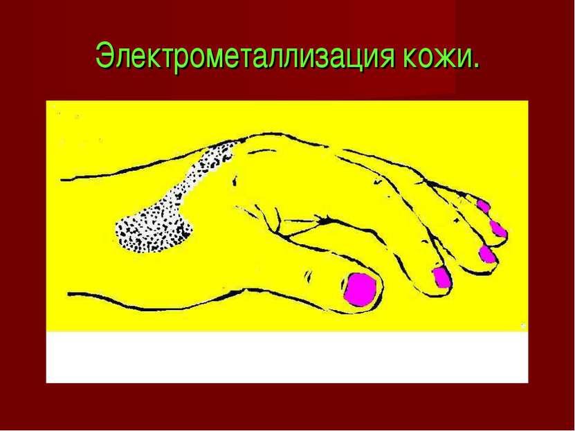 Электрометаллизация кожи.
