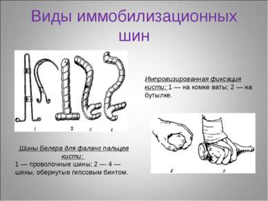 Виды иммобилизационных шин Шины Белера для фаланг пальцев кисти: 1 — проволоч...