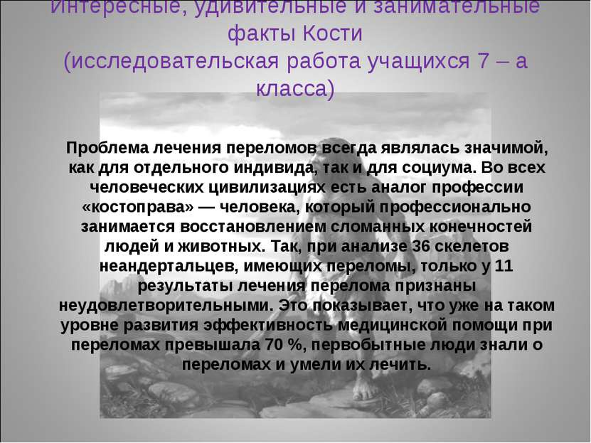 Интересные, удивительные и занимательные факты Кости (исследовательская работ...