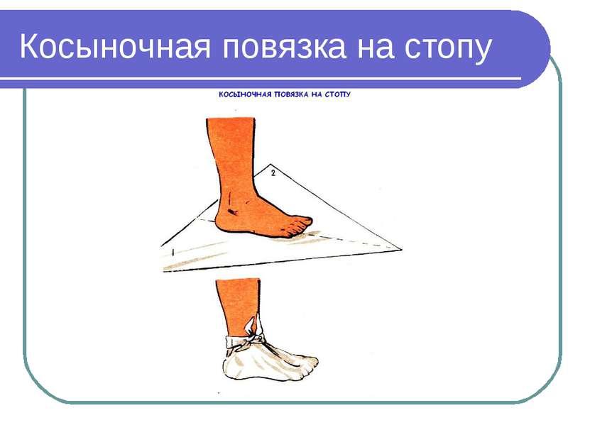 Косыночная повязка на стопу