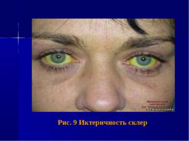 Рис. 9 Иктеричность склер