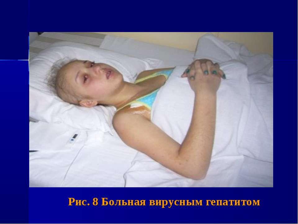 Рис. 8 Больная вирусным гепатитом
