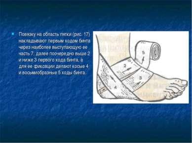 Повязку на область пятки (рис. 17) накладывают первым ходом бинта через наибо...