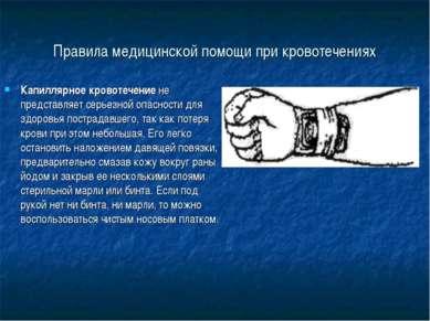 Правила медицинской помощи при кровотечениях Капиллярное кровотечение не пред...