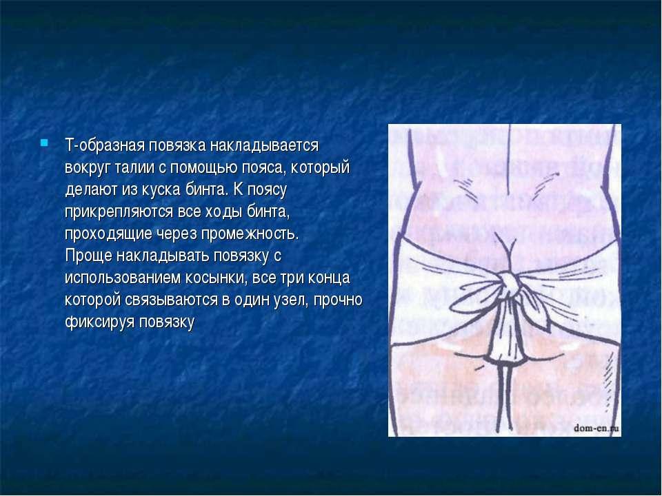 Т-образная повязка накладывается вокруг талии с помощью пояса, который делают...