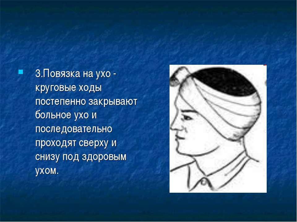 3.Повязка на ухо - круговые ходы постепенно закрывают больное ухо и последова...