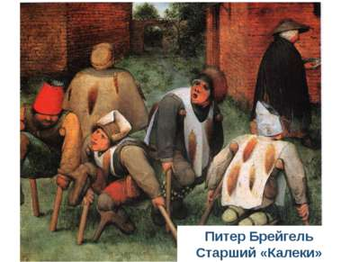 Питер Брейгель Старший «Калеки»