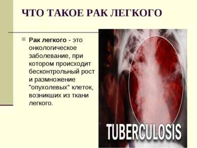 ЧТО ТАКОЕ РАК ЛЕГКОГО Рак легкого- это онкологическое заболевание, при котор...