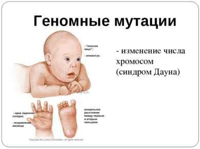 Геномные мутации - изменение числа хромосом (синдром Дауна)