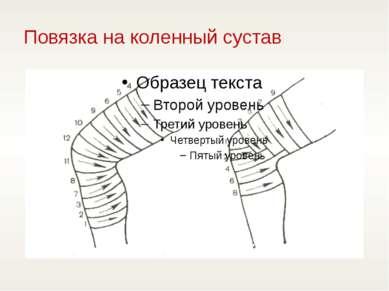 Повязка на коленный сустав