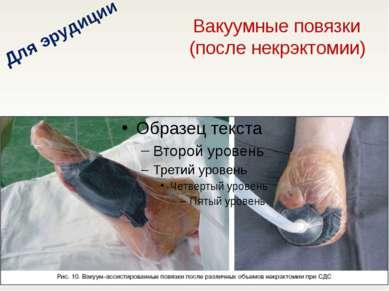 Вакуумные повязки (после некрэктомии) Для эрудиции