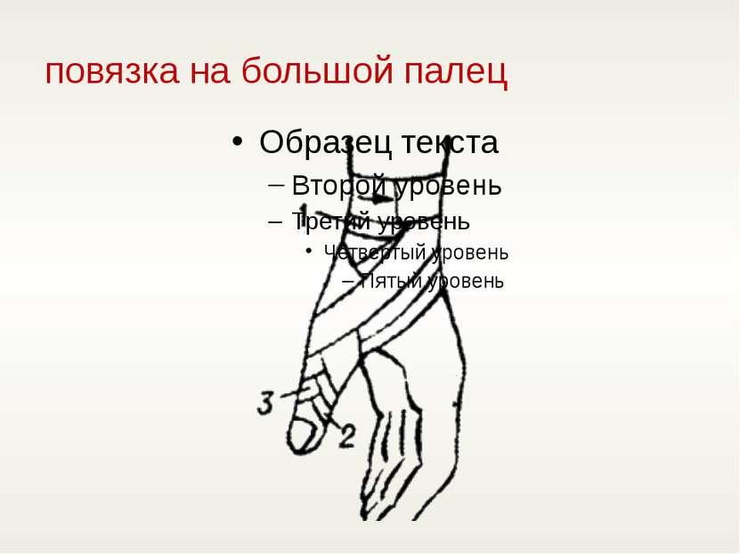 повязка на большой палец