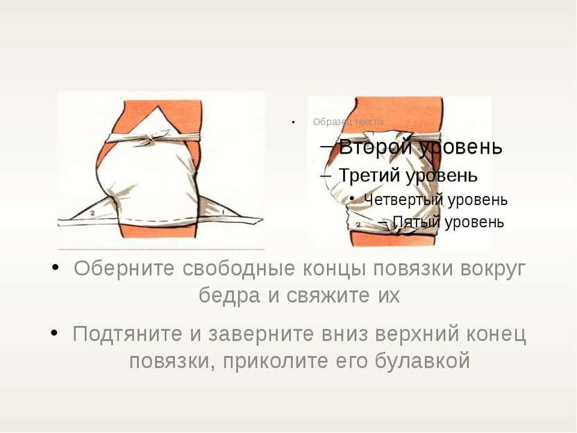 Оберните свободные концы повязки вокруг бедра и свяжите их Подтяните и заверн...