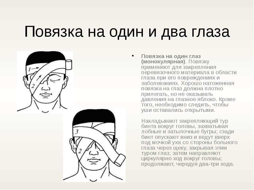 Повязка на один и два глаза Повязка на один глаз (монокулярная). Повязку прим...