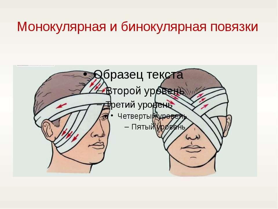 Монокулярная и бинокулярная повязки