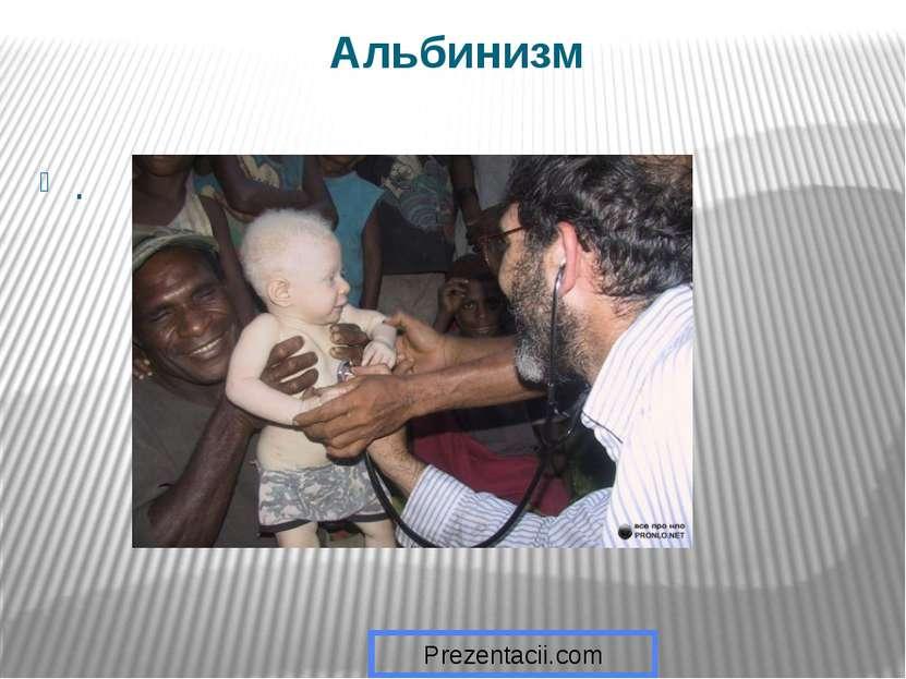 Альбинизм . Prezentacii.com