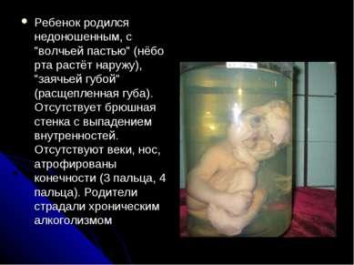 """Ребенок родился недоношенным, с """"волчьей пастью"""" (нёбо рта растёт наружу), """"з..."""
