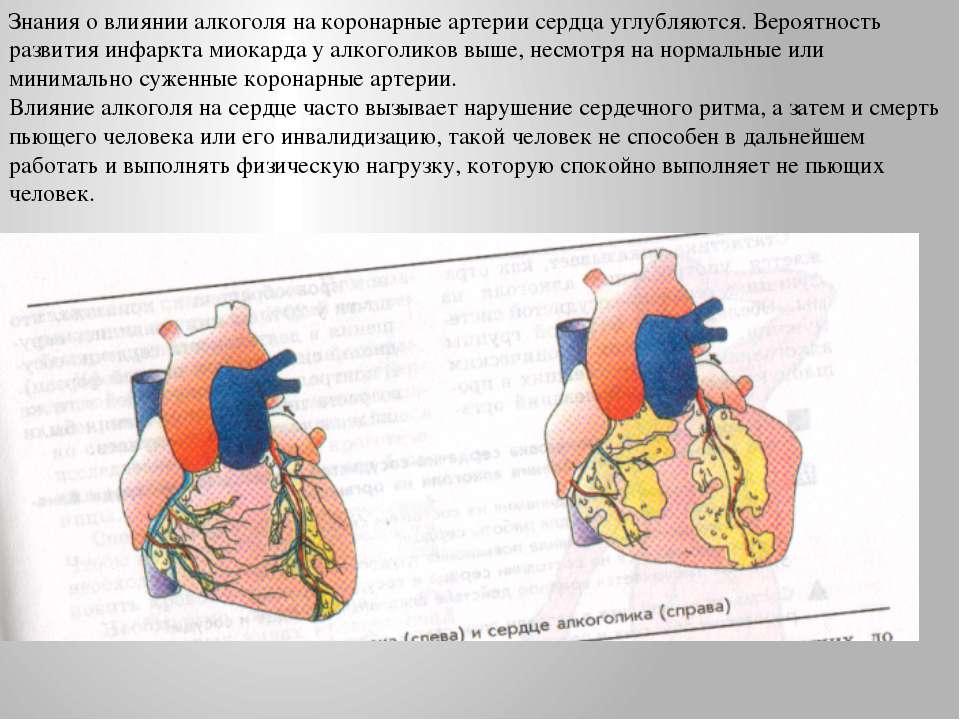 Знания о влиянии алкоголя на коронарные артерии сердца углубляются. Вероятнос...