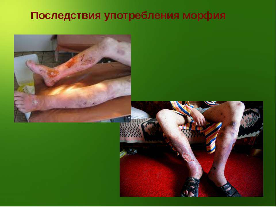 Последствия употребления морфия