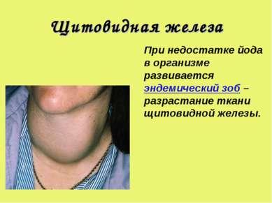 Щитовидная железа При недостатке йода в организме развивается эндемический зо...