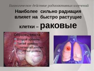 Наиболее сильно радиация влияет на быстро растущие клетки – раковые Биологиче...