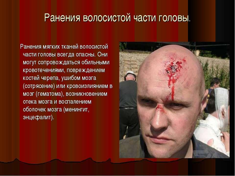 Ранения волосистой части головы. Ранения мягких тканей волосистой части голов...