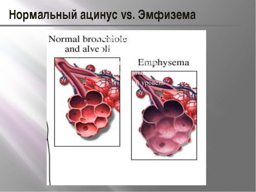 Нормальный ацинус vs. Эмфизема