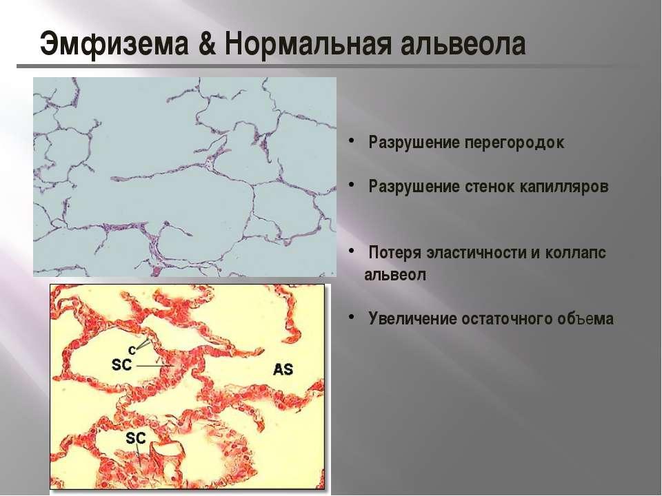 Эмфизема & Нормальная альвеола Разрушение перегородок Разрушение стенок капил...