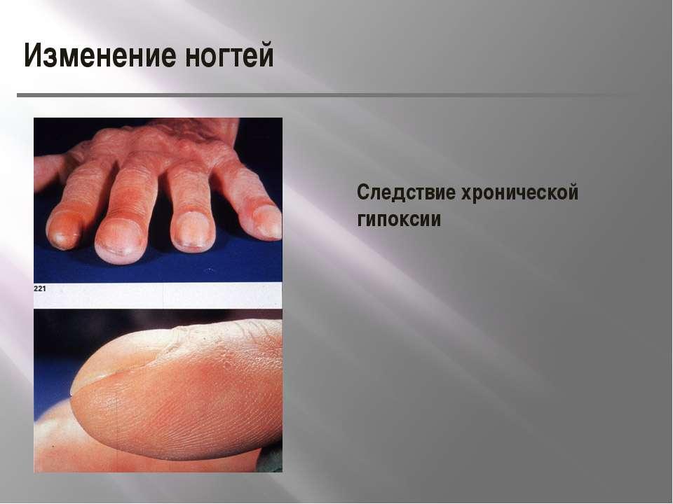 Изменение ногтей Следствие хронической гипоксии