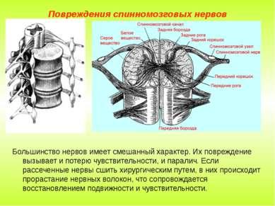 Повреждения спинномозговых нервов Большинство нервов имеет смешанный характер...