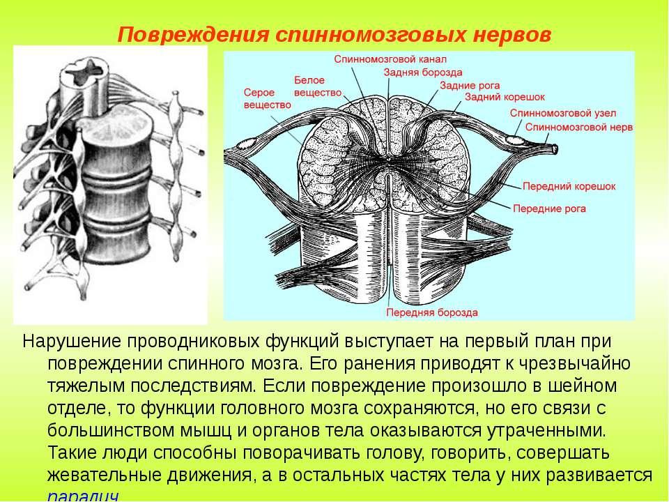 Повреждения спинномозговых нервов Нарушение проводниковых функций выступает н...