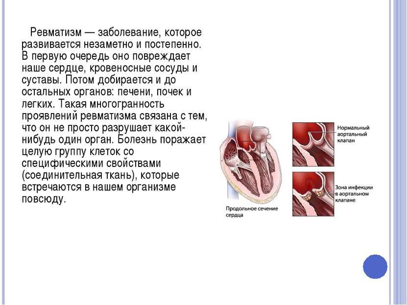 Ревматизм — заболевание, которое развивается незаметно и постепенно. В первую...