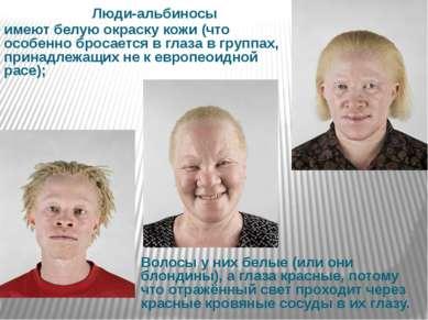 Люди-альбиносы имеют белую окраску кожи (что особенно бросается в глаза в гру...