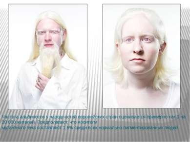 Частота альбиносов у народностей европейских стран оценивается примерно как 1...