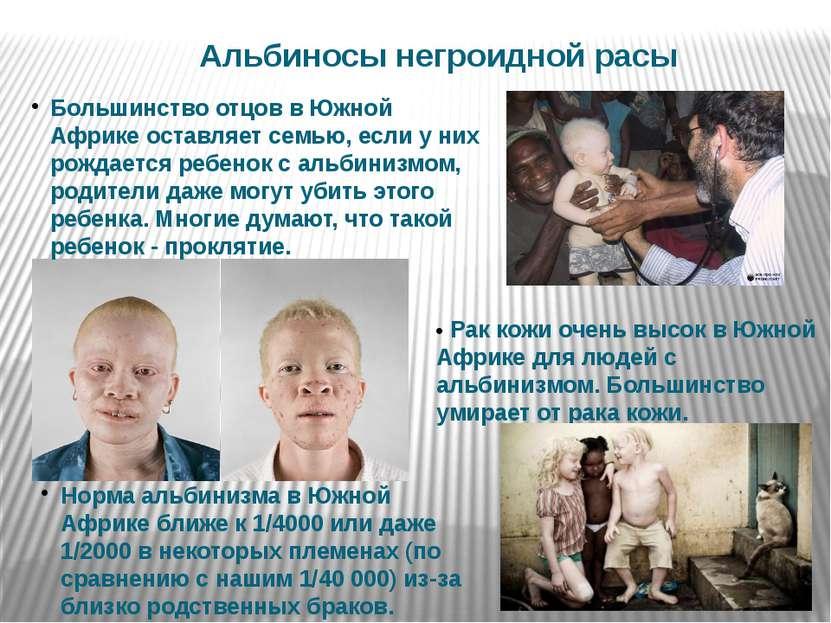 • Рак кожи очень высок в Южной Африке для людей с альбинизмом. Большинство ум...