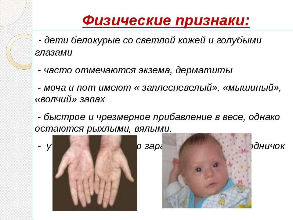 Физические признаки: - дети белокурые со светлой кожей и голубыми глазами - ч...