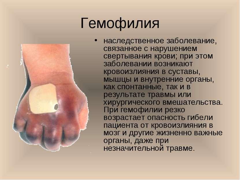 Гемофилия наследственное заболевание, связанное с нарушением свертывания кров...