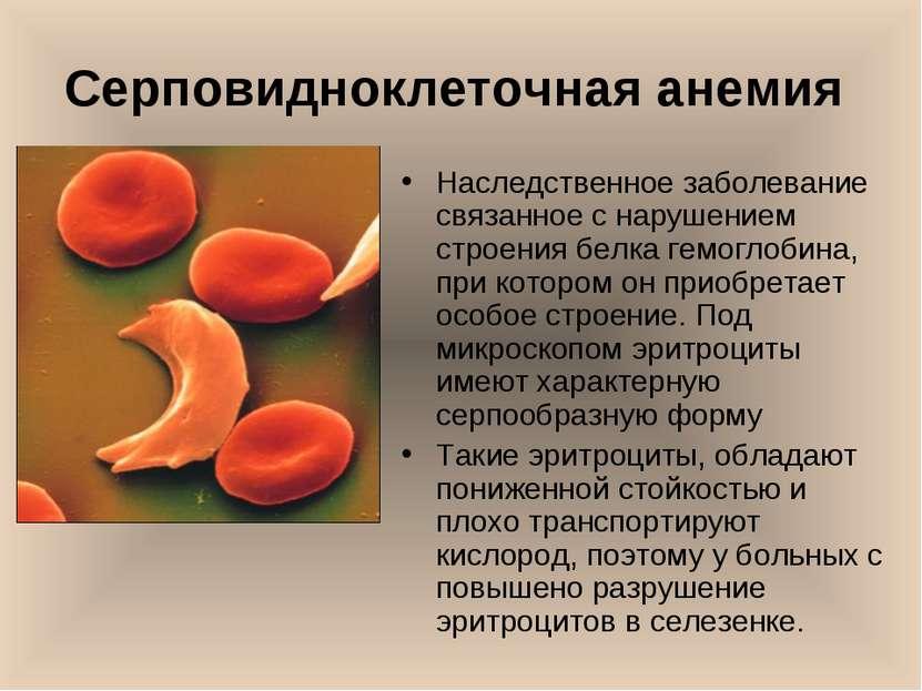 Серповидноклеточная анемия Наследственное заболевание связанное с нарушением ...