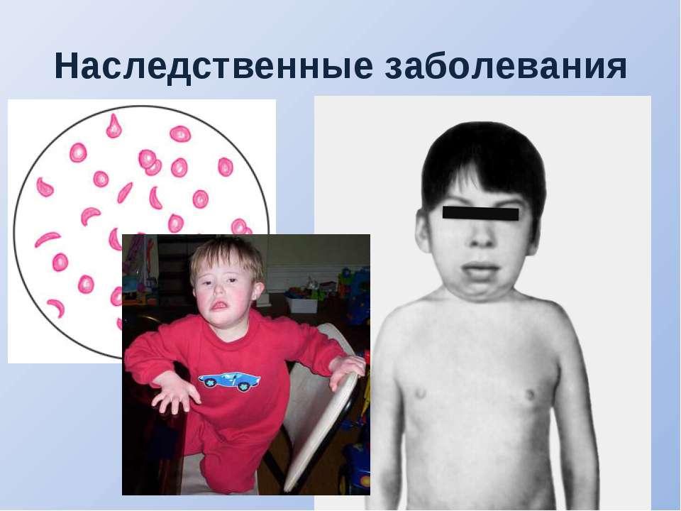 Наследственные заболевания