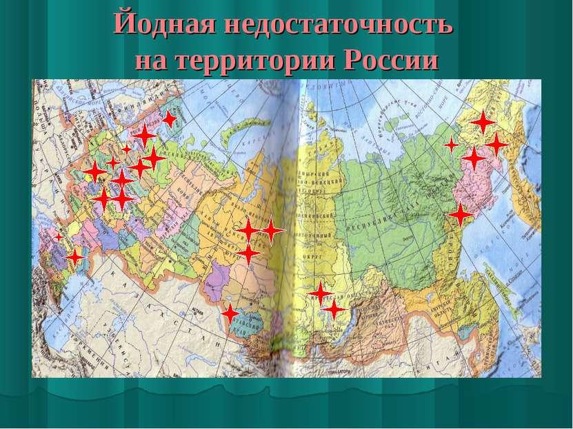 Йодная недостаточность на территории России