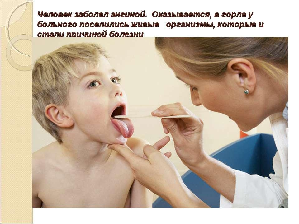 Человек заболел ангиной. Оказывается, в горле у больного поселились живые орг...