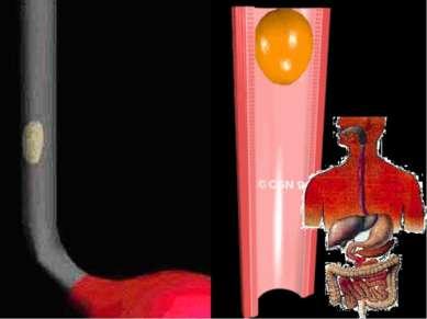 Пищевод Пищевод – это мышечная трубка. ( L= 25 см.) Мускулатура пищевода сама...