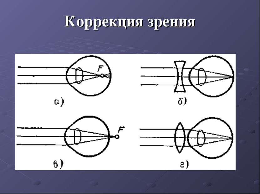 Коррекция зрения