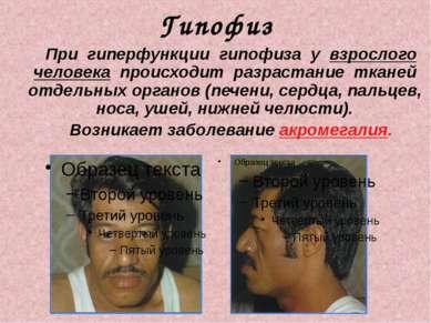 Гипофиз При гиперфункции гипофиза у взрослого человека происходит разрастание...