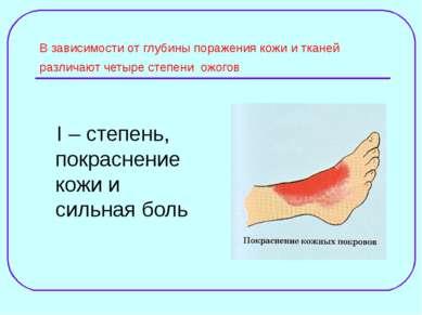 В зависимости от глубины поражения кожи и тканей различают четыре степени ожо...