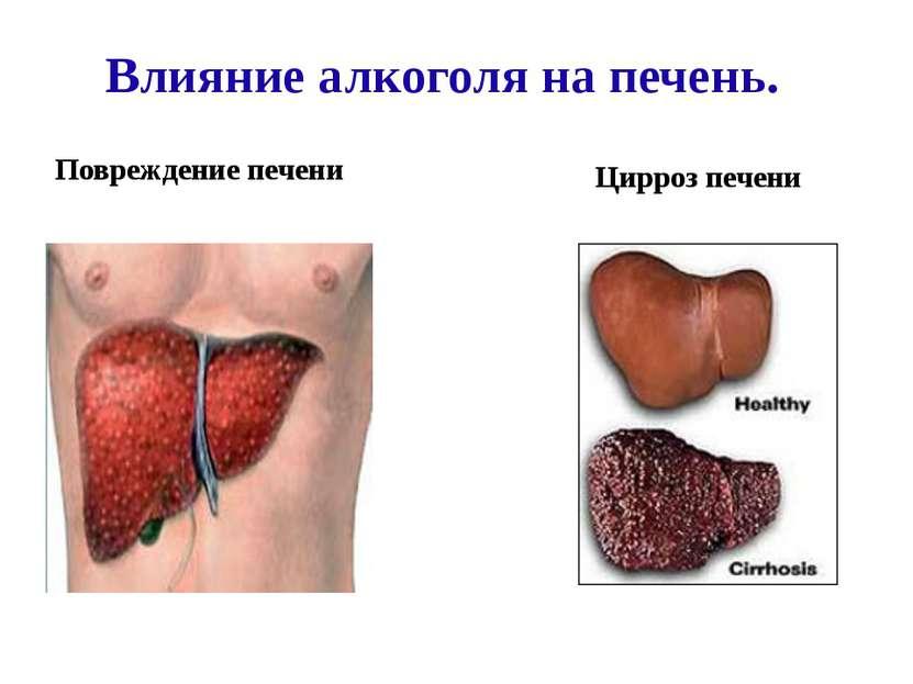 Влияние алкоголя на печень. Повреждение печени Цирроз печени